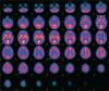brain scans 1